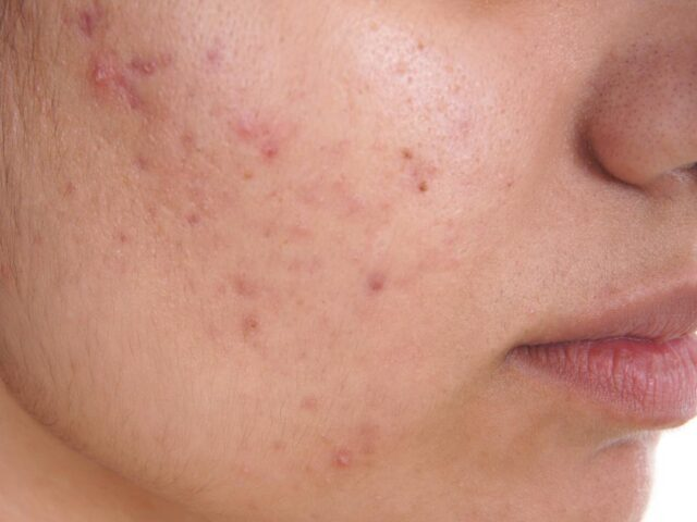 What Are the Best Ways To Treat Acne?